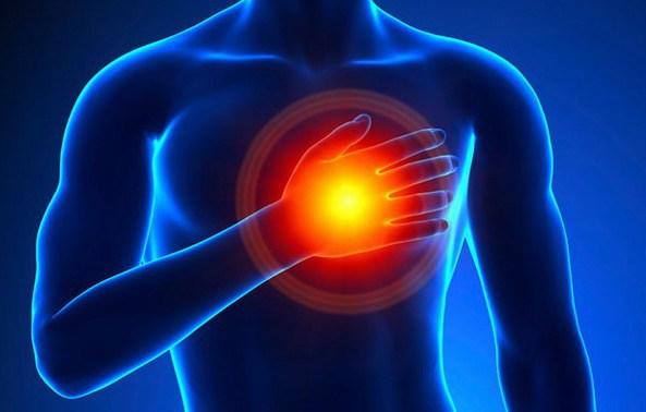 acute-coronary-syndrome