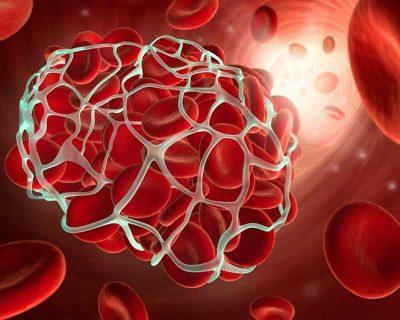 Актуальные вопросы лабораторной диагностики в патологии гемостаза