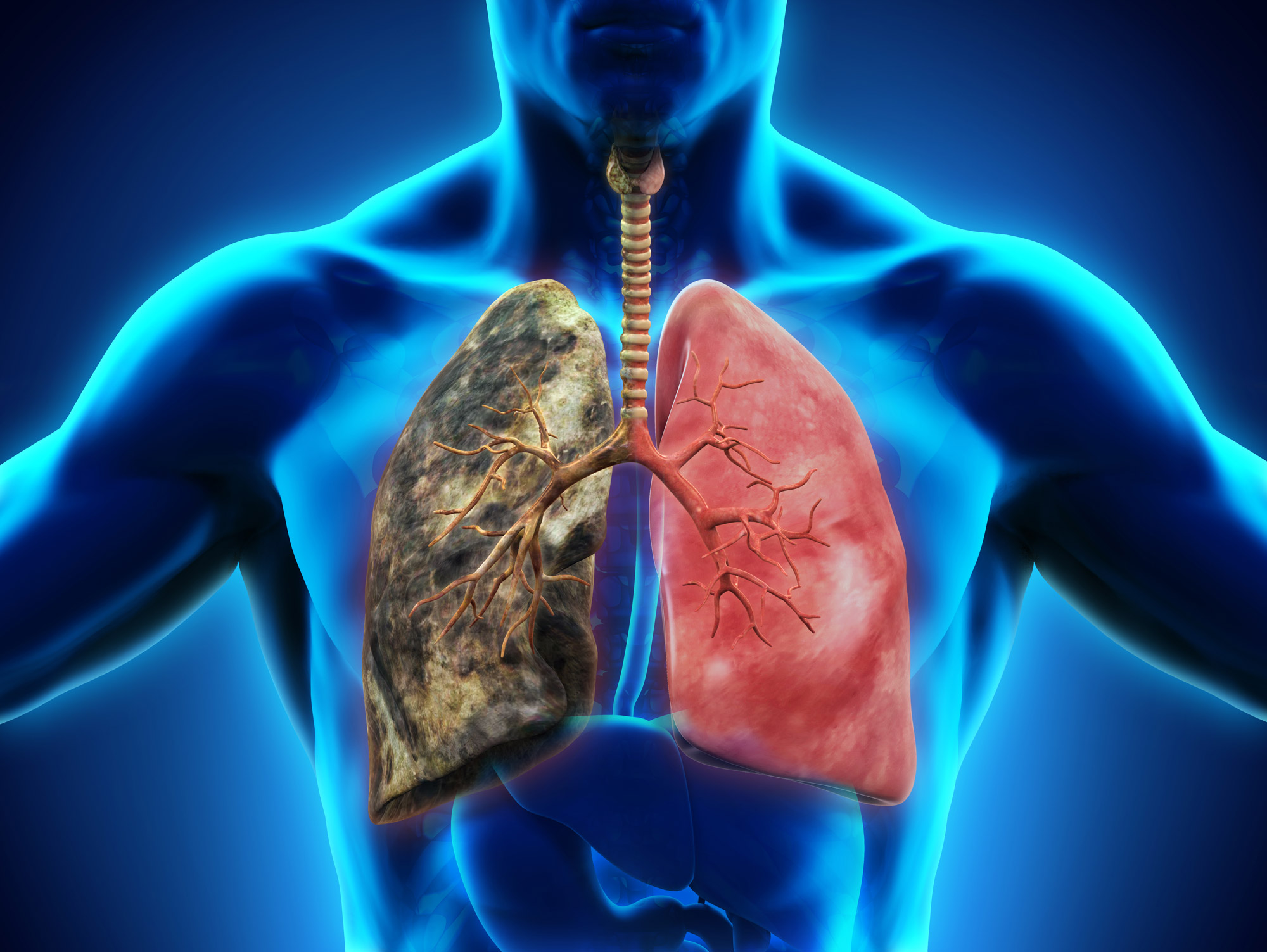 lung-cancer-1